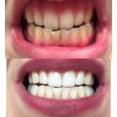 Bielenie zubov - výsledok ošetrenia 2