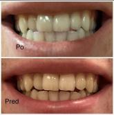 Bielenie zubov - výsledok ošetrenia