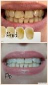 Bielenie zubov v Žiline