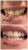 Bielenie zubov - výsledok