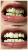 Bielenie zubov - pred a po