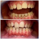 Pieskovanie zubov metódou Air-Flow