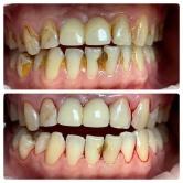 Pieskovanie zubov - Air-flow - výsledok