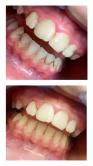 Pieskovanie zubov - výsledok ošetrenia